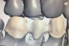 También ecaneamos prótesis fija con y sin metal.