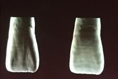 Texturas horizontales y verticales.