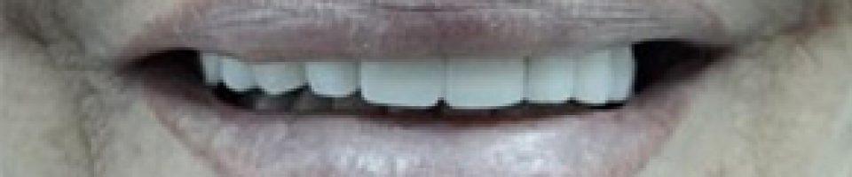 Prótesis Estética Dental. La cerámica dental.