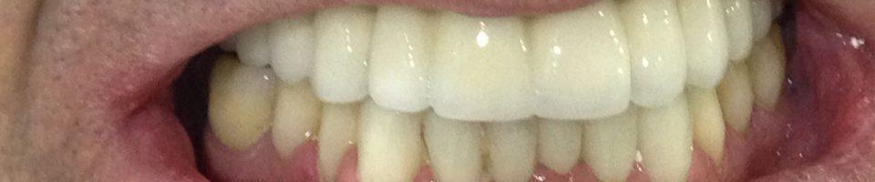 Prótesis Estética Dental. Implantes.